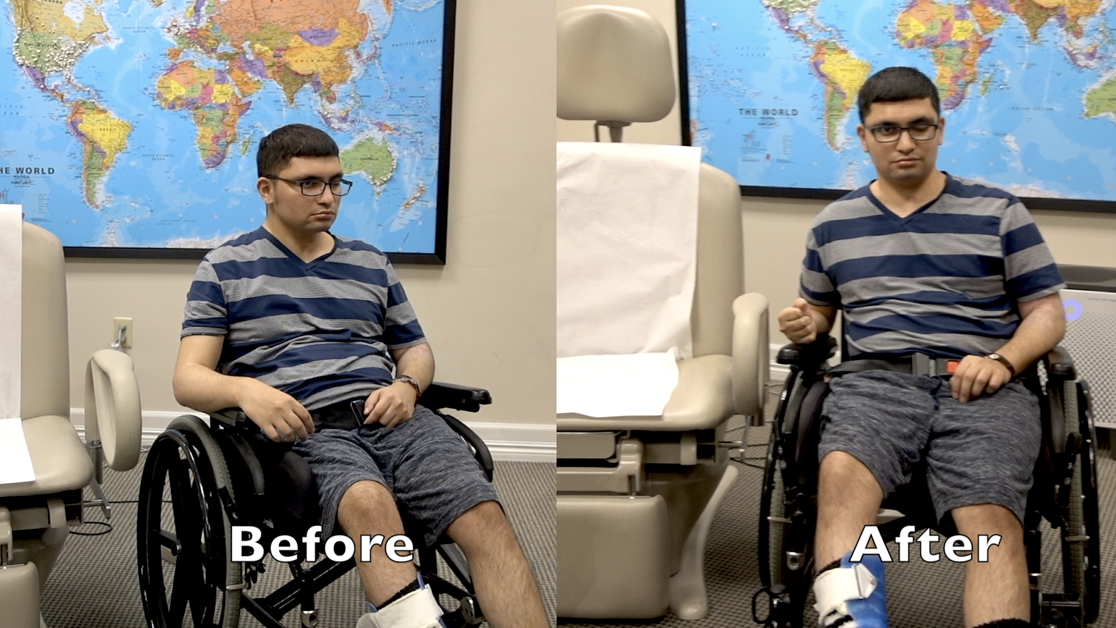 Ataxia rapidly improves after treatment with PSE more than 3 years after stroke